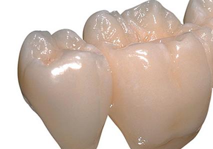 передние зубы до установки коронок