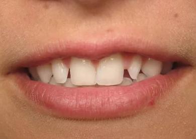 зубы без коронок