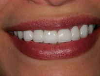 установка виниров на зубы