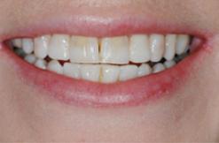 установка виниров на зубы ДО