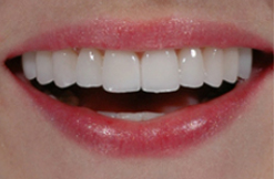 установка виниров на зубы ПОСЛЕ