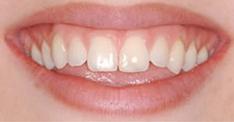 установка люминиров на зубы ДО