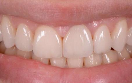 установка люминиров на зубы ПОСЛЕ
