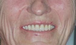 протезирование    зубов стоимость